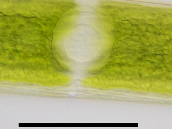 Closterium acerosum (SCHR.) EHR ex RALFS var. elongatum BRÉB.
