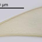 Closterium costatum CORDA ex RALFS