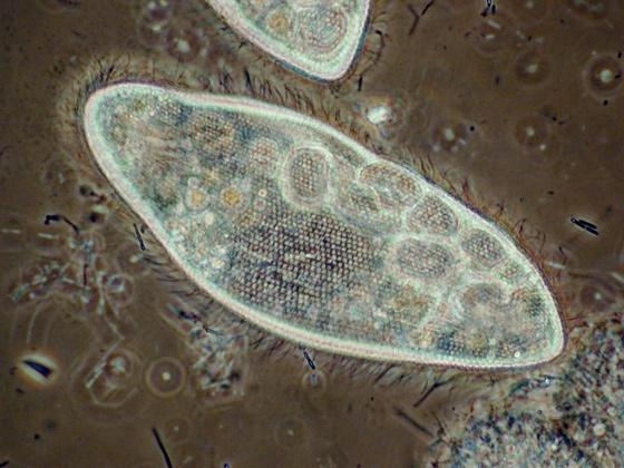 Paramecium caudatum (Silberliniensystem), Phasenkontrast