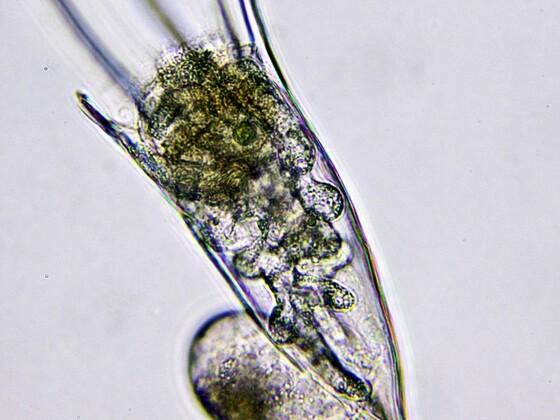 Kellicottia longispina m. Bertramia asperospora