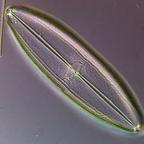 Diatomee aus dem Schollener See