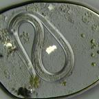 Fadenwurm im Wassertropfen