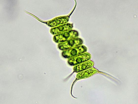 Scenedesmus longispina