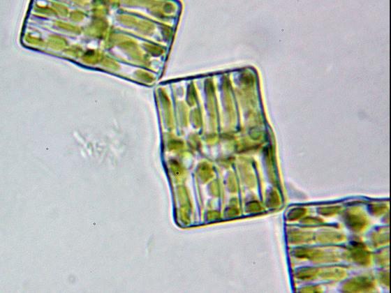 Tabellaria flocculosa, Objektiv Zeiss Neofluar 63 Ph 3