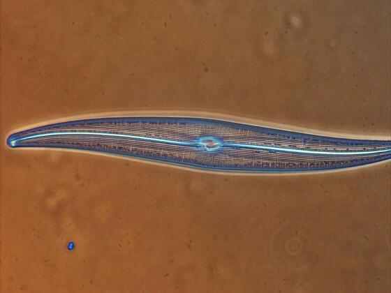 Diatomeen