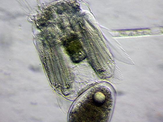 Polyarthra vulgaris, schiefe Beleuchtung