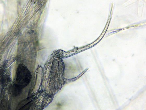 Eudiaptomus gracilis, p5, m.