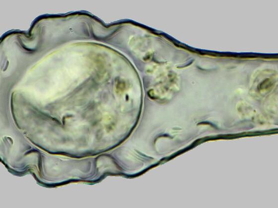 Hyalosphenia elegans-Beschalte Amöbe,