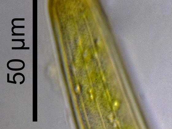Closterium angustatum KÜTZ. ex RALFS