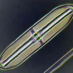 Pinnularia bei ringförmiger Beleuchtung